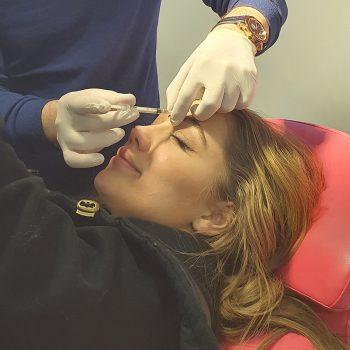 Botox-facial-6