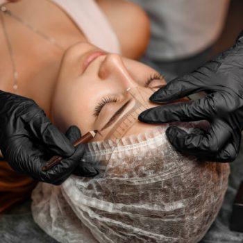 Eyebrow transplantation-1