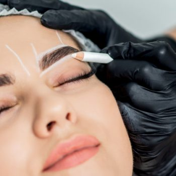 Eyebrow transplantation-2