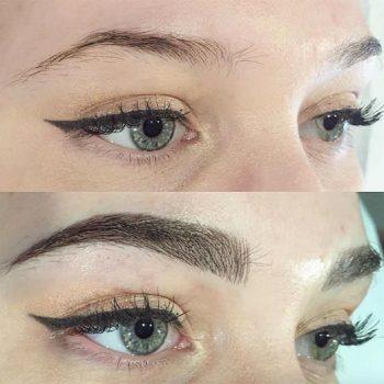 Eyebrow-transplantation-3
