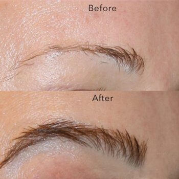 Eyebrow-transplantation