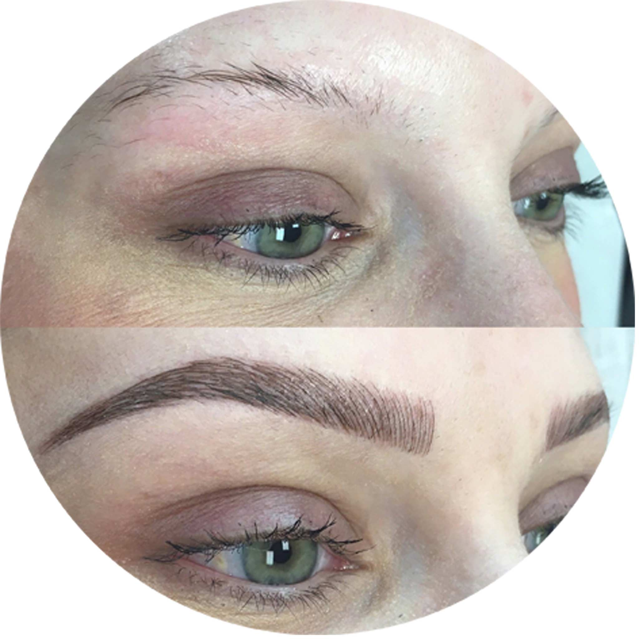 Eyebrow-transplantation-7