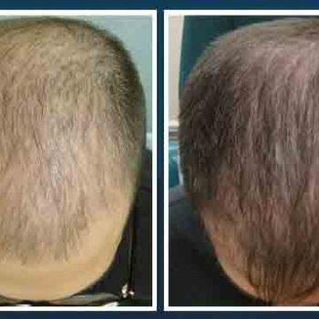 Hair-transplantation-3