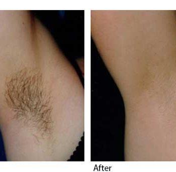 Laser-hair-12