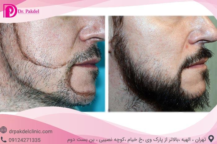 Beard-implantatio-8