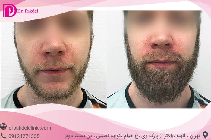 Beard-implantation-1