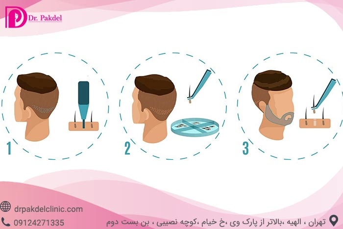 Beard-implantation-2