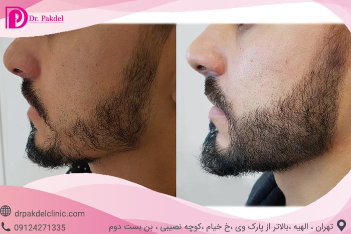 Beard-implantation-3