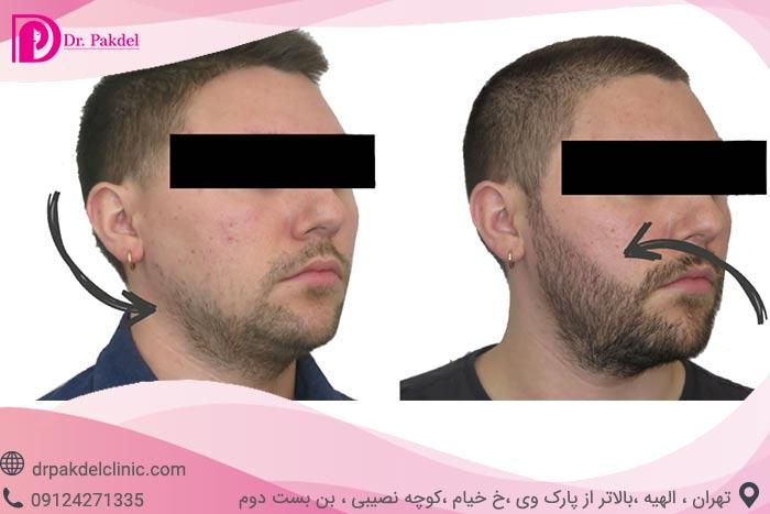 Beard-implantation-4