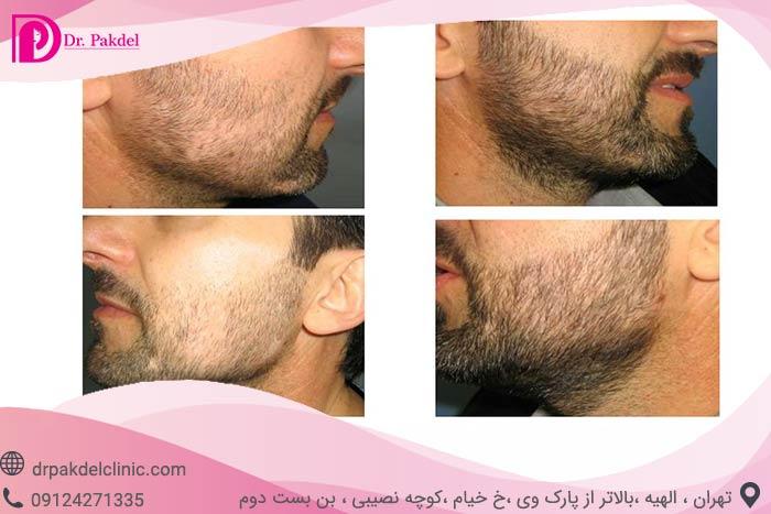 Beard-implantation-5