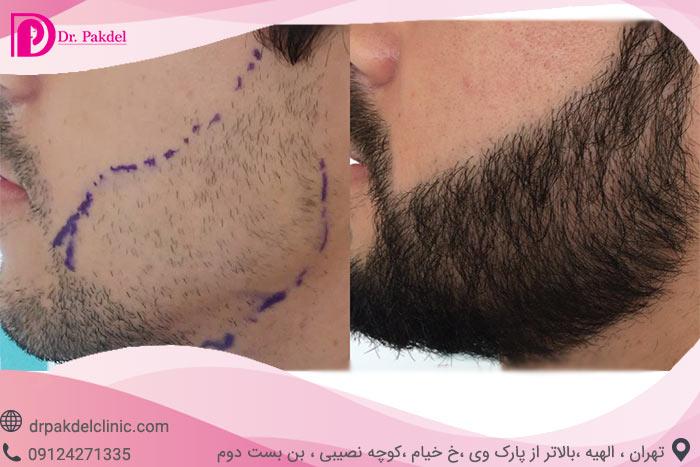 Beard-implantation-6