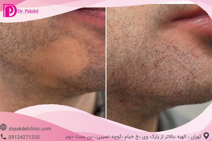 Beard-implantation-7