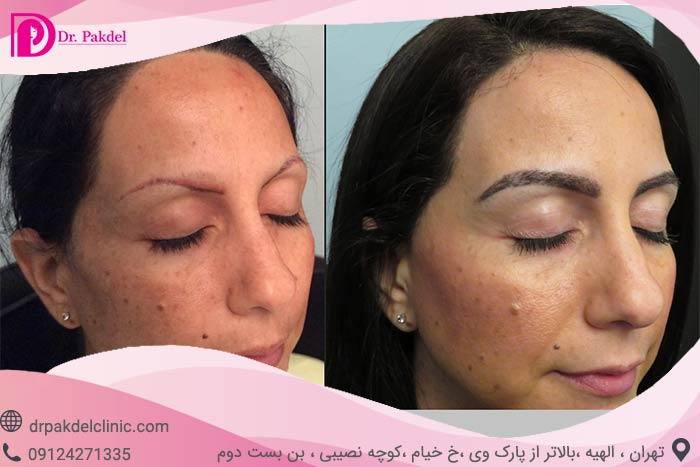 Eyebrow-transplantation-2