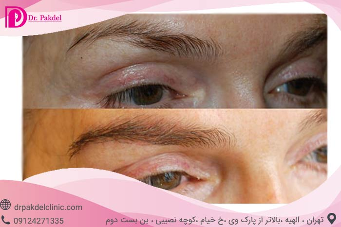 Eyebrow-transplantation-5