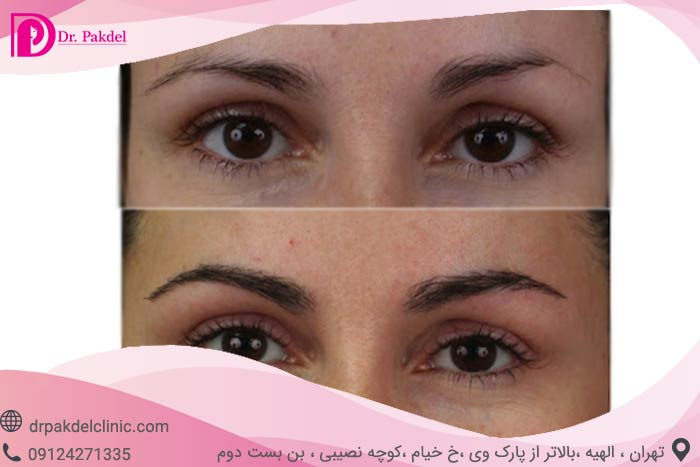 Eyebrow-transplantation-6