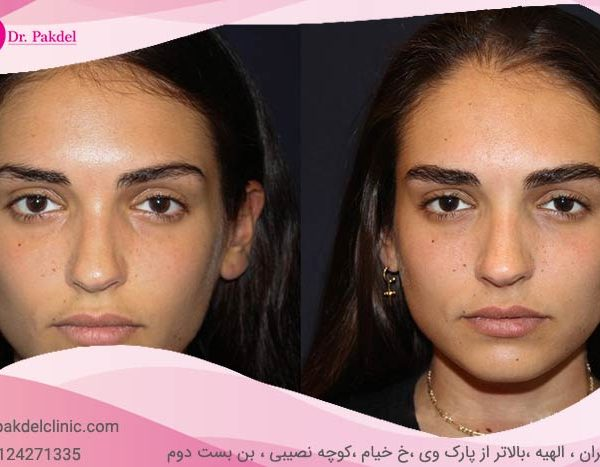 Eyebrow-transplantation