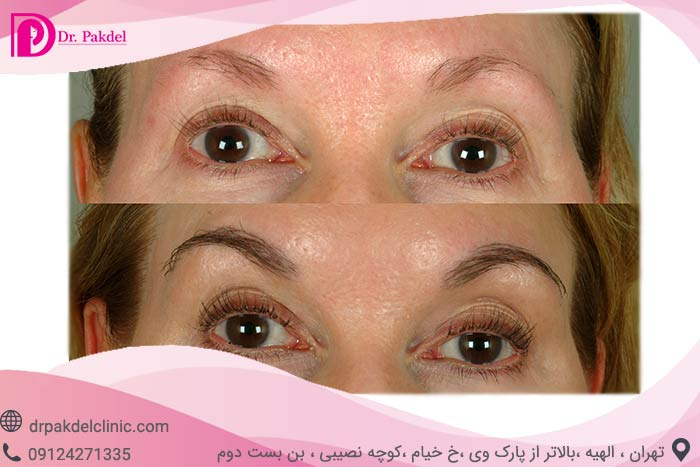 Eyebrow-transplantation-8
