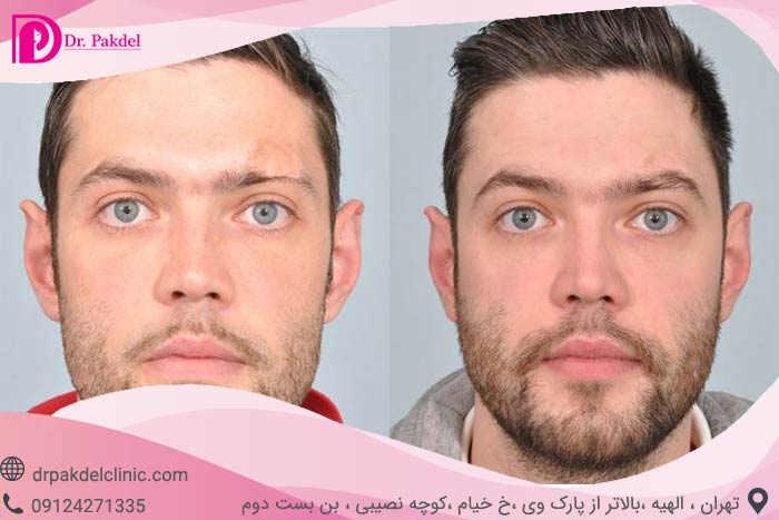 Eyebrow-transplantation-9