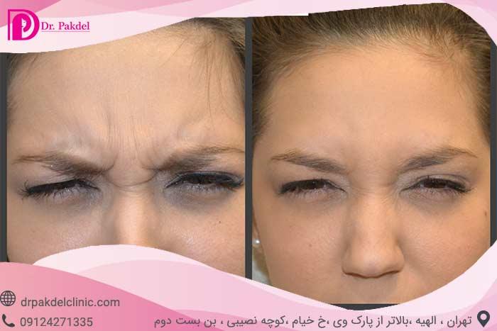 botox-injectionl-12