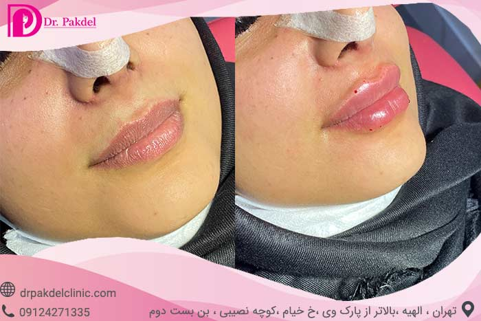 gel-injection-6