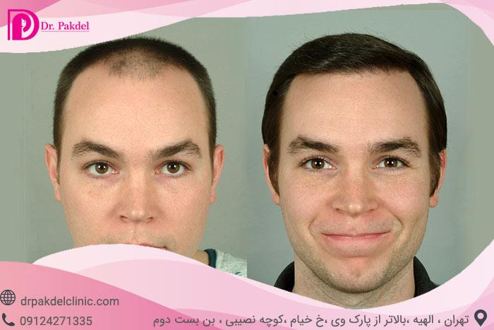Hair-transplant-14