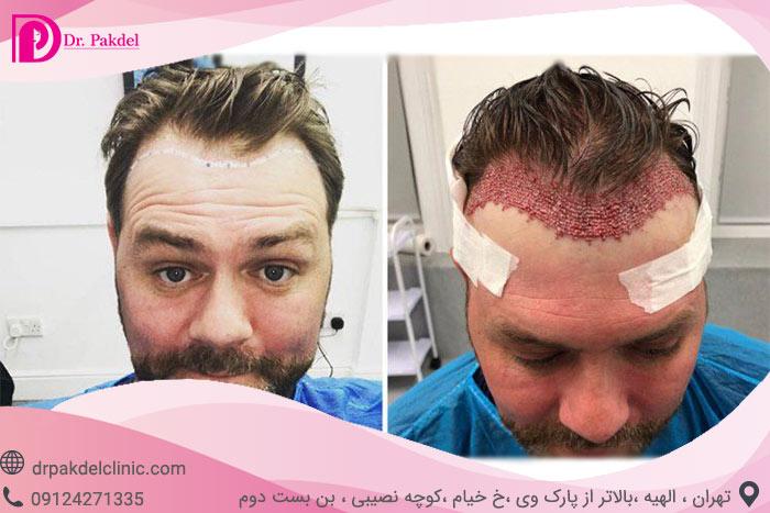 Hair-transplant-17