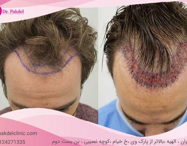 Hair-transplant-21