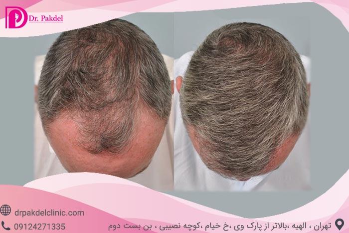 Hair-transplant-23