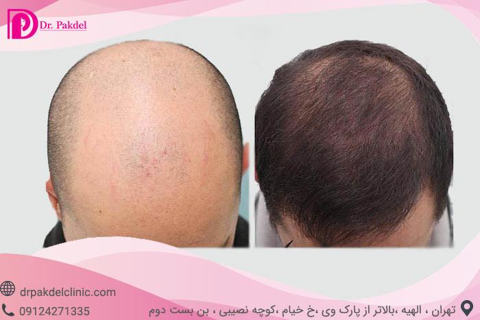Hair-transplant-27