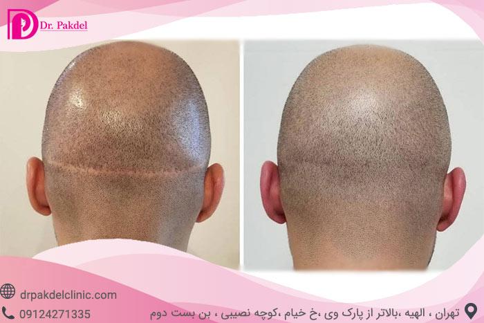 Hair-transplant-4