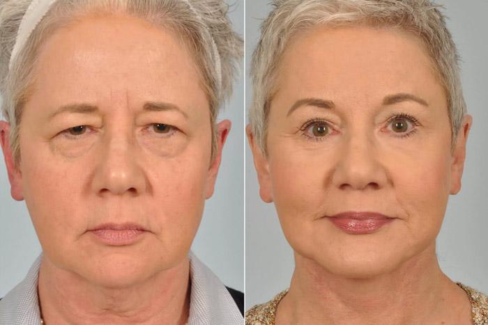 Eyebrow-lift
