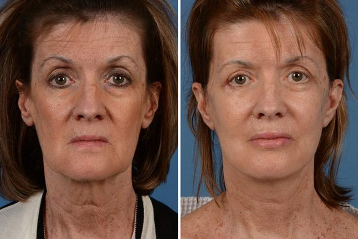 Facial-fat-injection-2