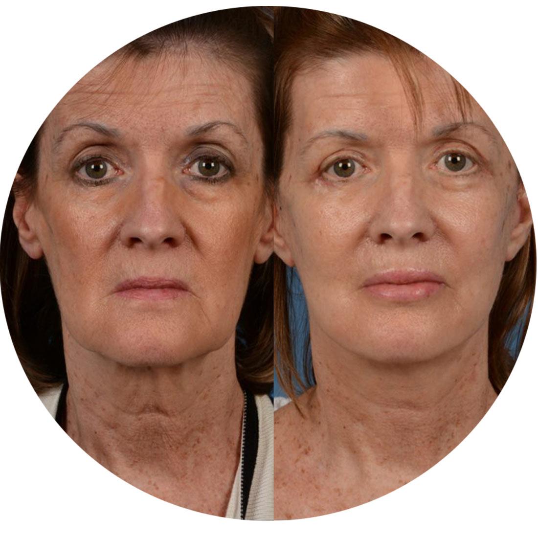 Facial-fat-injection