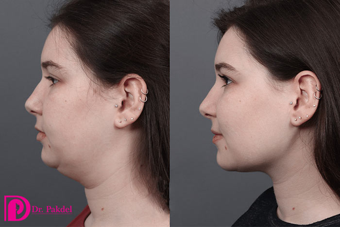 Liposuction Neck