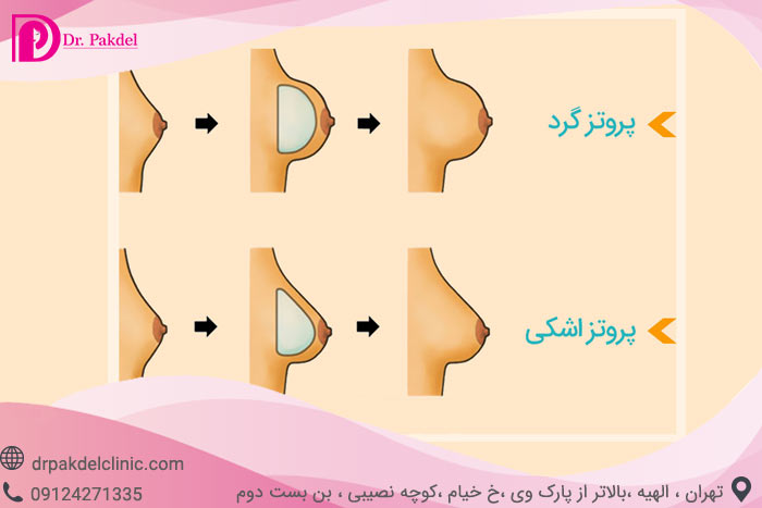 Breast-prosthesis-10
