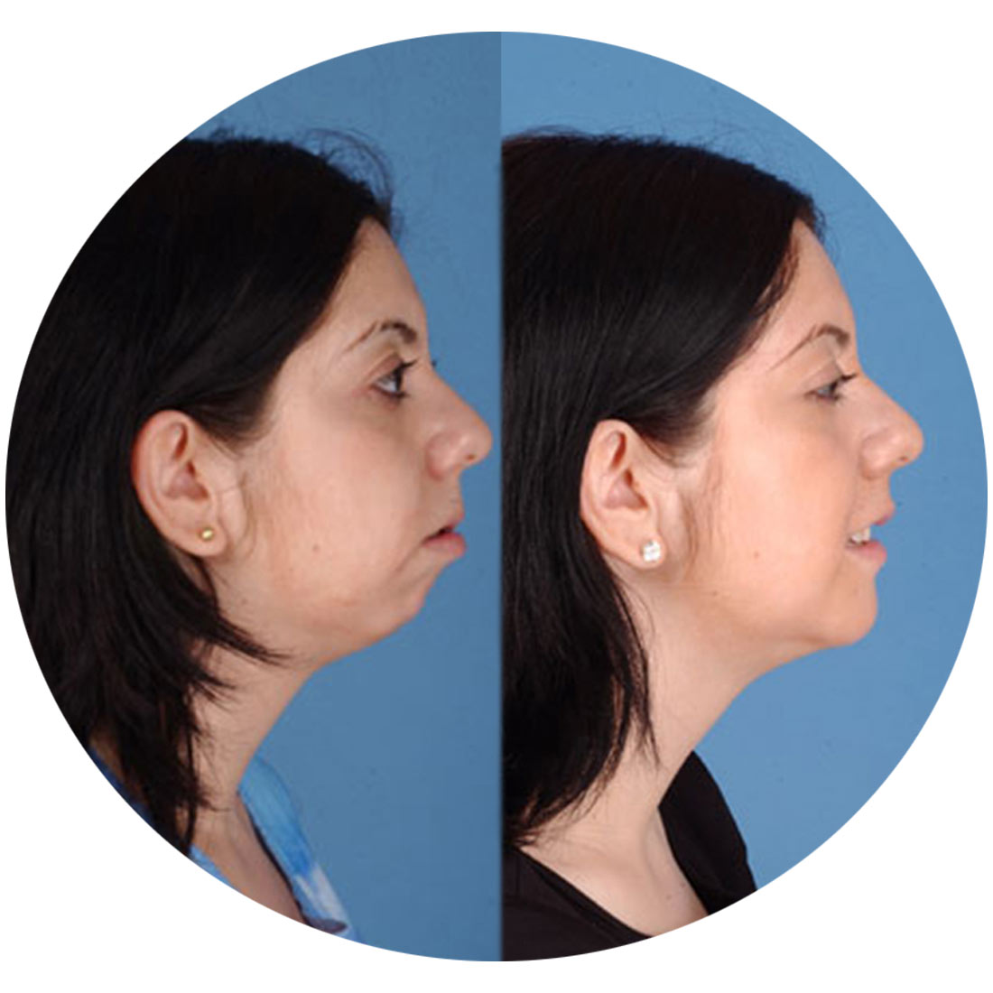 Cosmetic-Surgery-Chin