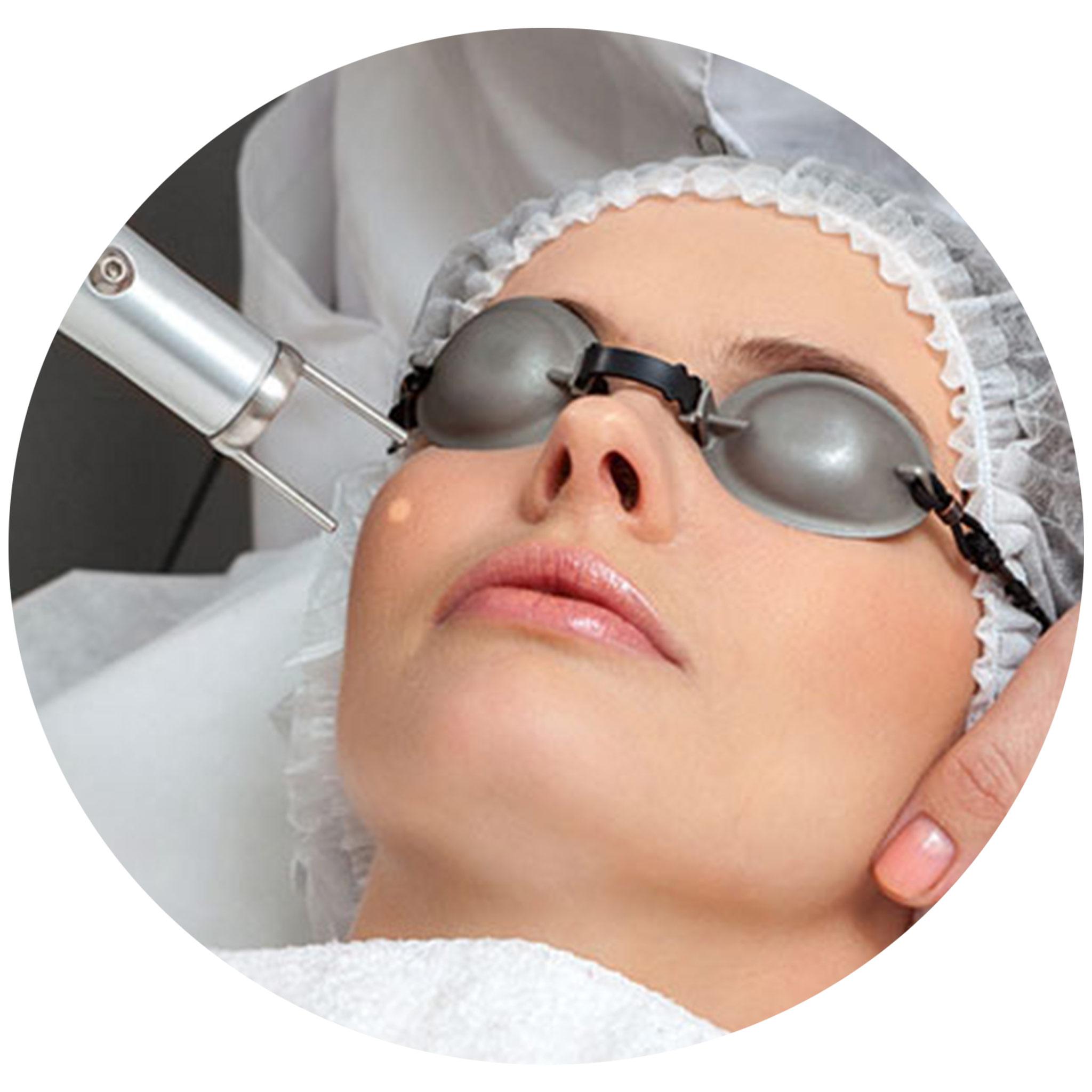 Erbium-skin-skin-rejuvenation-1