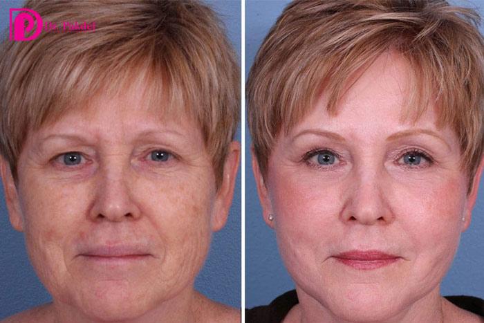 Erbium-skin-skin-rejuvenation