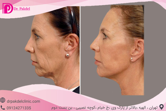 Face-lift-16