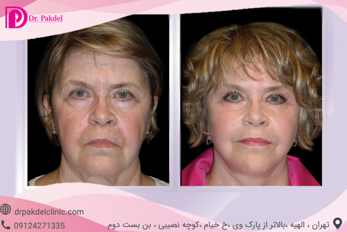 Face-lift-19