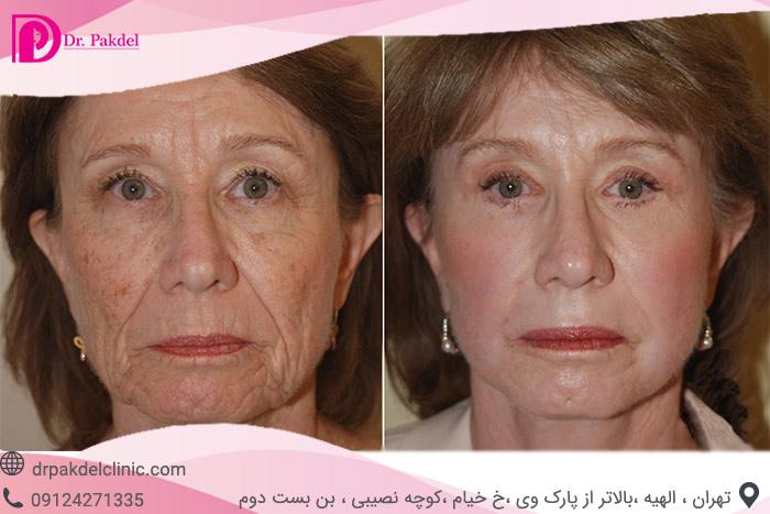 Face-lift-21