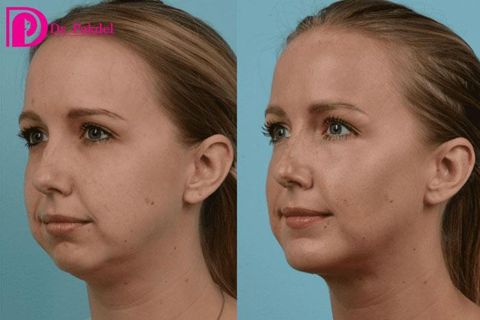 Removing-facial-fat-1