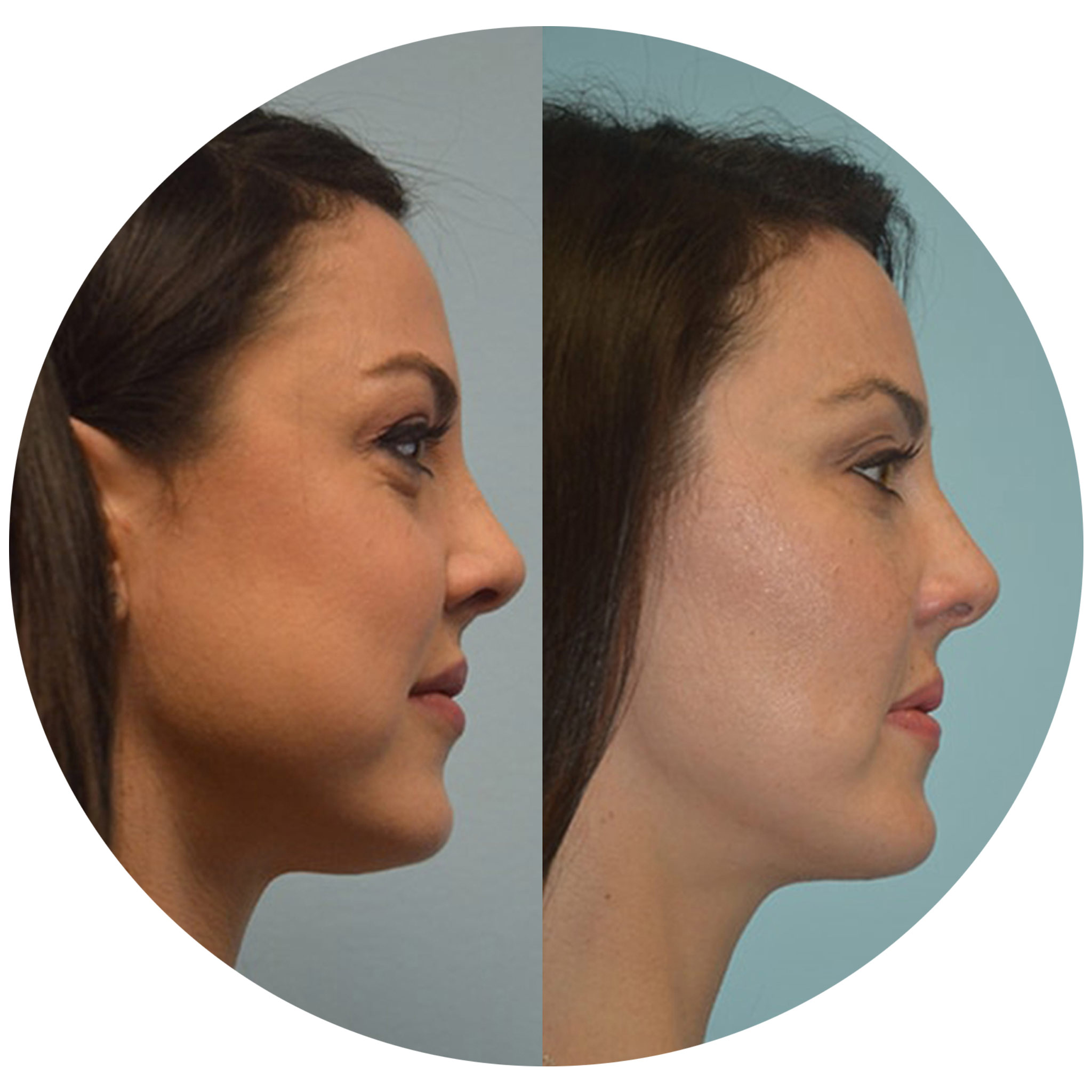 Removing-facial-fat-3