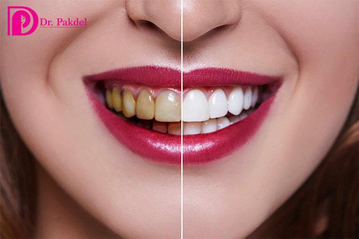 Tooth-bleaching
