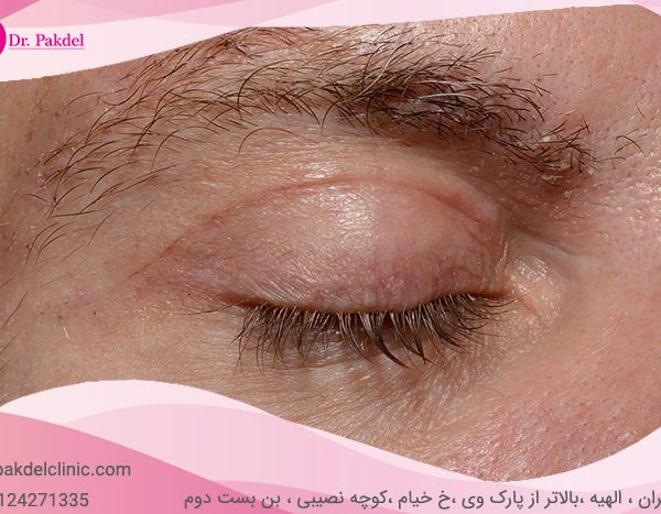 Blepharoplasty-13