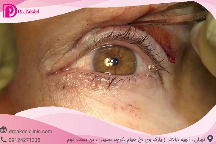 Blepharoplasty-15