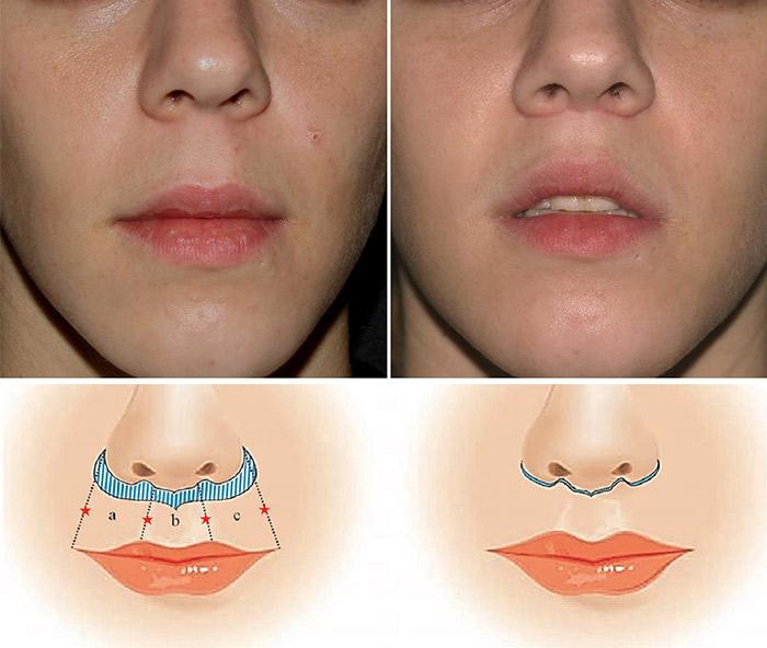 Central lip-1