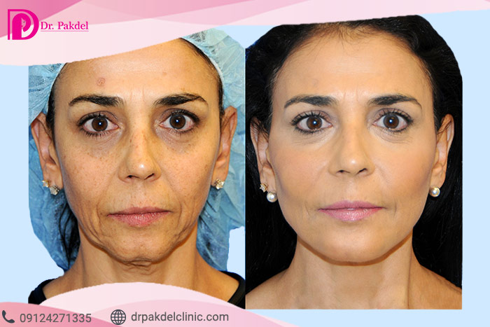 Face-lift-25