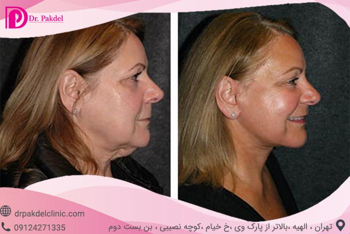 Face-lift-28