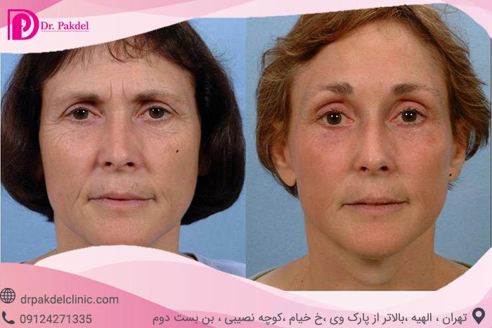 Face-lift-29